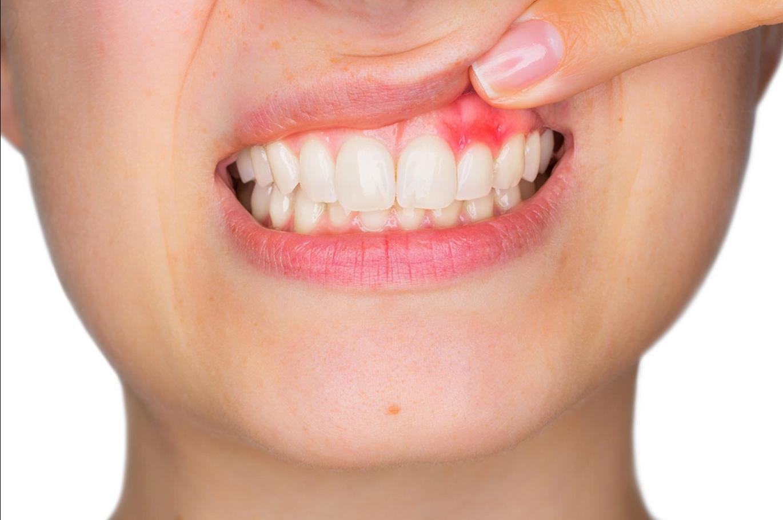 La periodontitis agrava la infección por Covid